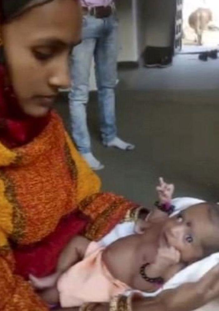 Bayi dengan tiga tangan bersama dengan ibunya