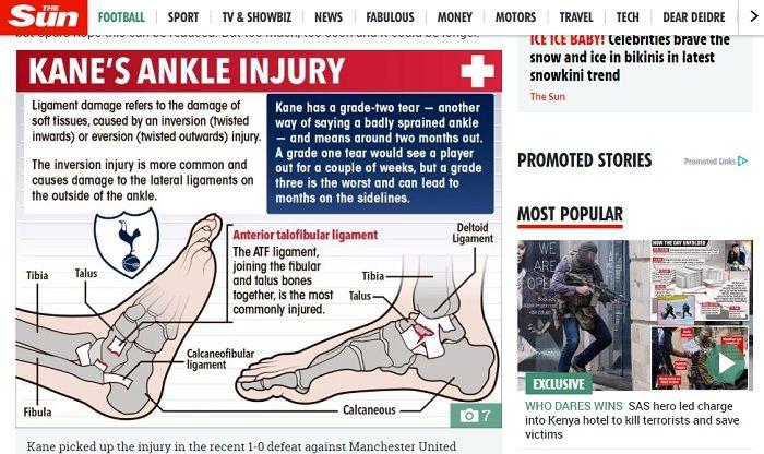 Ilustrasi cedera yang dialami oleh penyerang Tottenham Hotspur, Harry Kane.