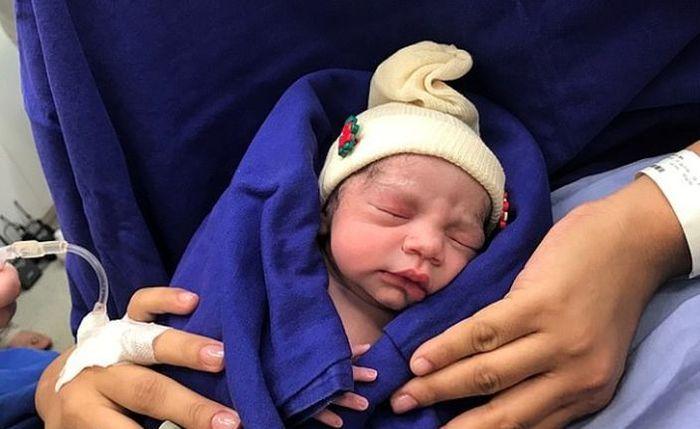 Bayi pertama yang lahir dengan transplantasi rahim dari mayat