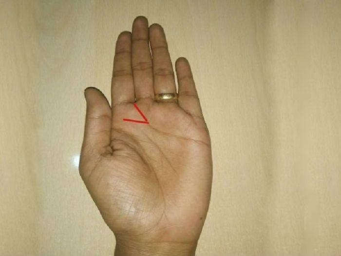 Cek Telapak Tangan Kirimu, Bila Ada Garis Berbentuk 'V' Tandanya Kamu Orang yang Beruntung!