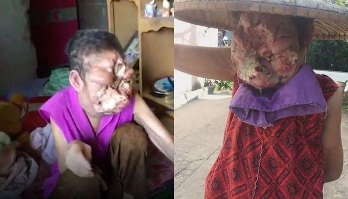 Wajah Librada Patam yang kini hancur dan tak bisa dikenali lagi