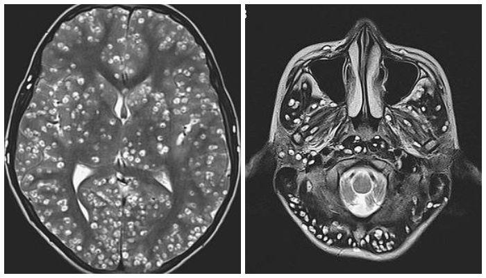 Hasil pindai MRI otak pasien dengan ratusan cacing pita bersarang di otaknya.