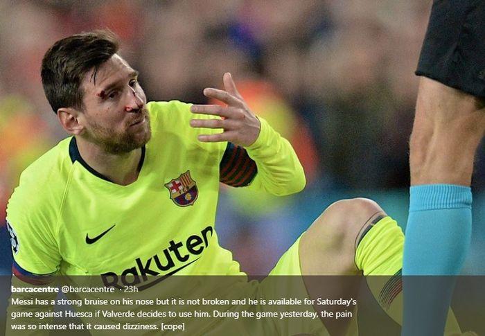 Wajah megabintang Barcelona, Lionel Messi terluka hingga berdarah akibat duel dengan Chris Smalling sat leg pertama perempat final Liga Champions
