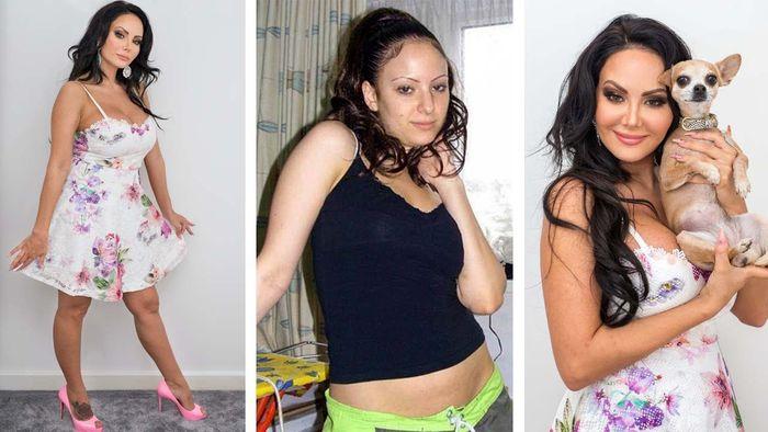 Perubahan penampilan Star Delguidice sebelum dan setelah operasi