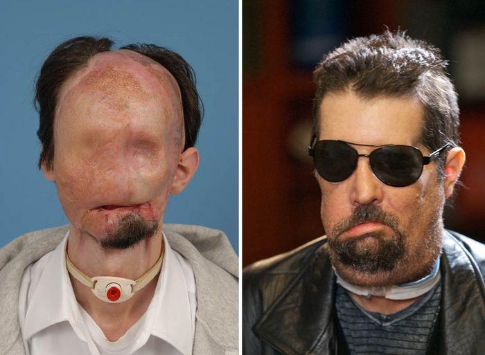 Dallas setelah mendapatkan transplantasi wajah.