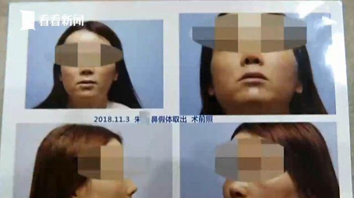 Sebelumnya Zhu melakukan operasi untuk mengubah bentuk hidungnya.