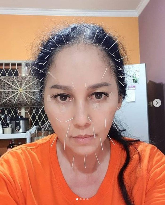 Meriam Bellina yang sedang menjalani akupunktur wajah