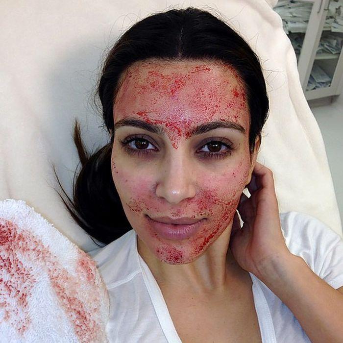 Kim Kardashian melakukan teatment vampire lifting