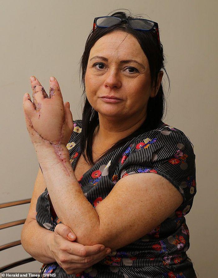 Moira Brady (45) kehilangan satu jari setelah dicakar kucing