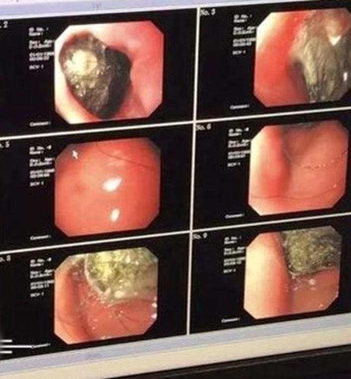 Endoskop pada perut gadis yang berisi gumpalan rambut.