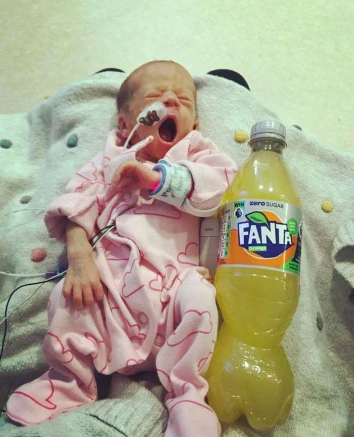 thesun Si kembar yang lahir prematur dan seukuran botol minuman soda.