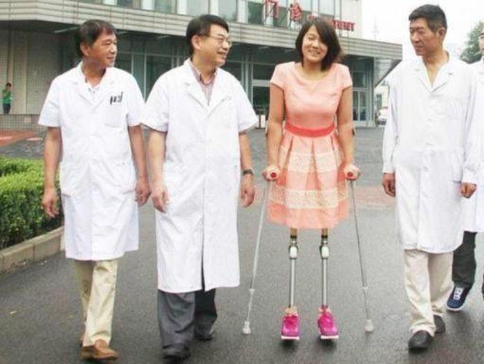 Sekarang tidak menggunakan bola basket namun kaki palsu.