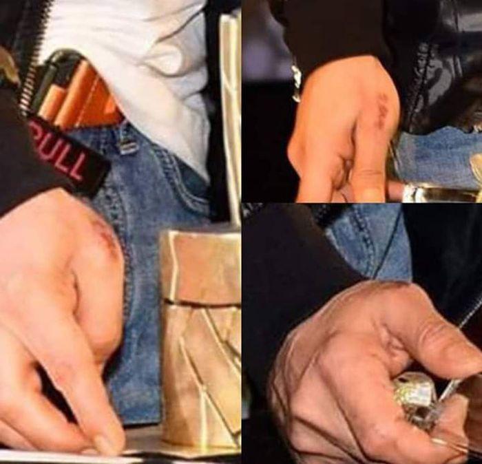 Tangan Shah Rukh Khan yang diduga bekas luka bakar setelah menyelamatkan manajer Aishwarya Rai