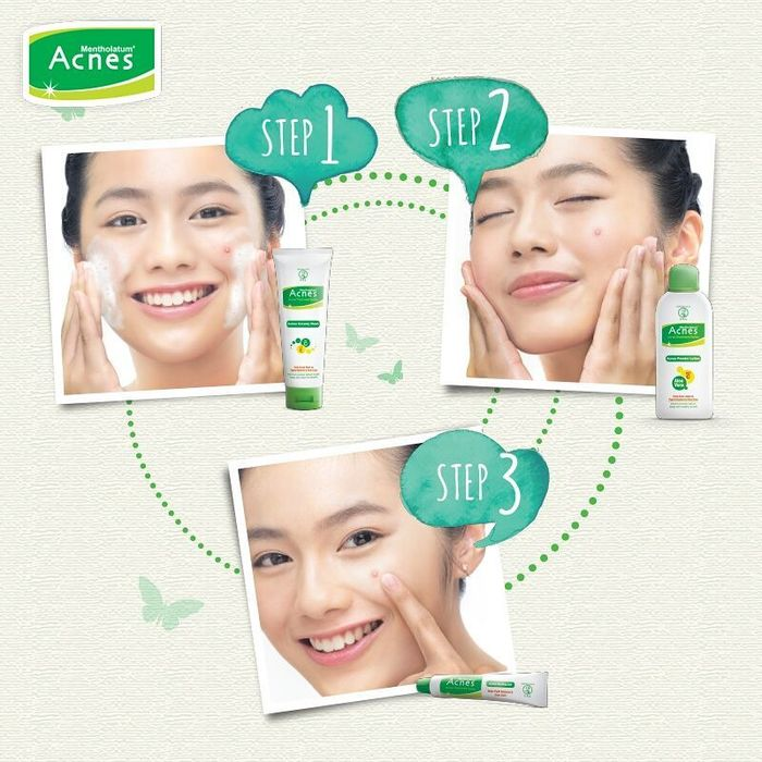 Acnes Treatment Series