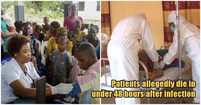 Penyakit ini hanya butuh waktu sebelum 48 jam untuk membunuh penderitanya.