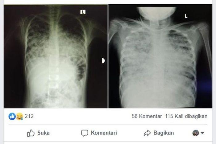 Fungsi Paru Paru Untuk Tubuh Organ Inilah Yang Diserang Virus Corona Semua Halaman Kids