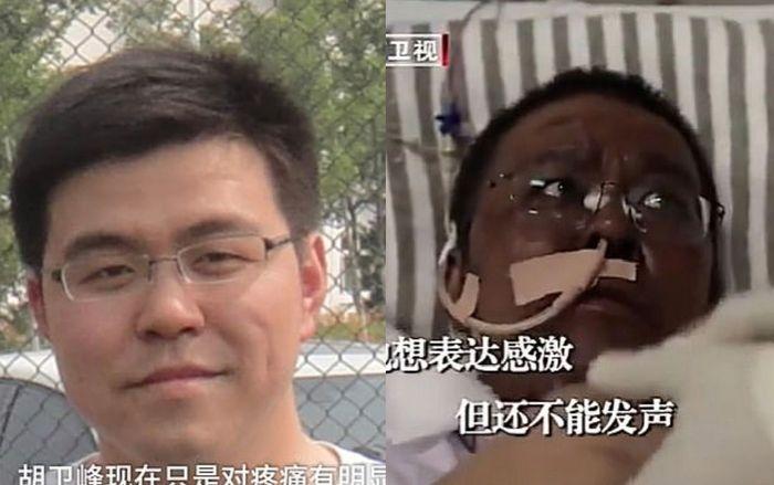 Kulit Dokter Hu Weifeng juga berubah menjadi hitam setelah perawatan corona