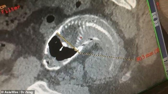 Ikan nila ditemukan dalam usus pria