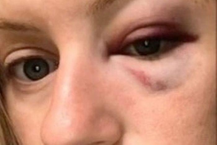 Bikin Orang Penasaran karena Matanya Bengkak setelah Malam Pernikahan, Wanita Ini Mengungkap Insiden Konyol yang Menimpanya.