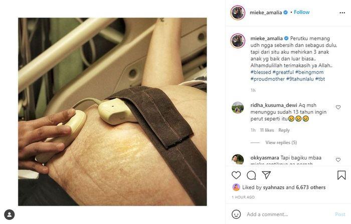 Mieke Amalia Unggah Foto Perut Buncitnya Saat Hamil