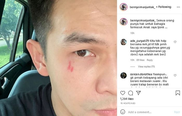 Unggahan Benny Simanjuntak usai Jonathan Frizzy disebut buka peluang rujuk dengan Dhena Devanka.Tangkap layar Instagram @bennysimanjuntak_