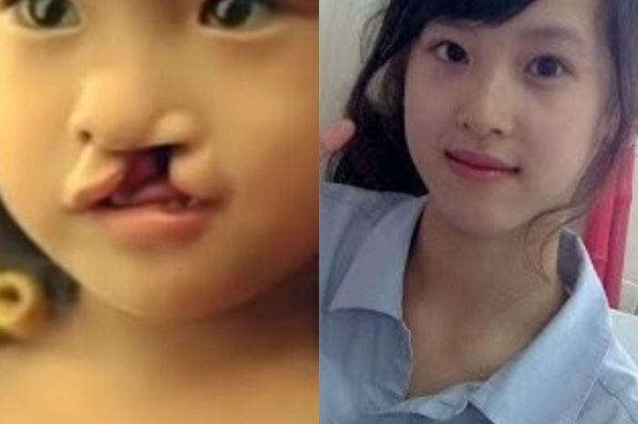 Li Lan anak bibir sumbing yang menginspirasi