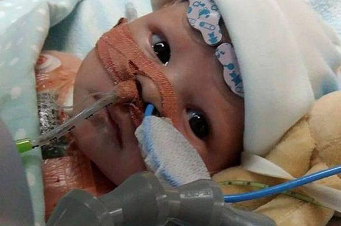 Bayi Termuda Penerima Transplantasi Jantung