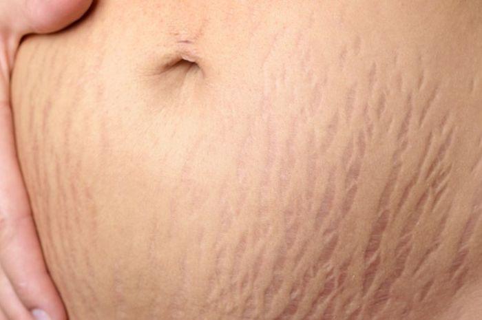 stretch marks membuat wanita tidak pecaya diri.