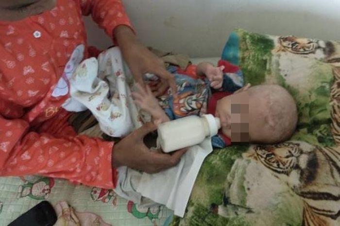 Bayi Masuk Rumah Sakit Karena Diberi Susu Kental Manis, Ini Kata Dokter