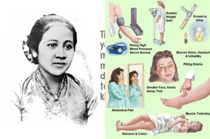 Mengenal preeklampsia atau keracunan kehamilan yang merenggut nyawa RA Kartini