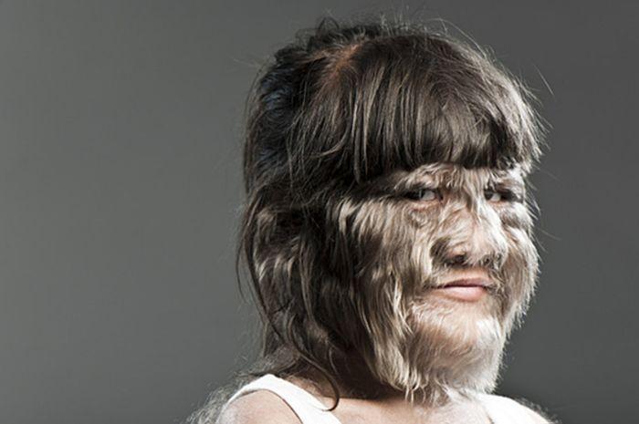 Kenali Sindrom Werewolf atau Hypertrichosis pada anak