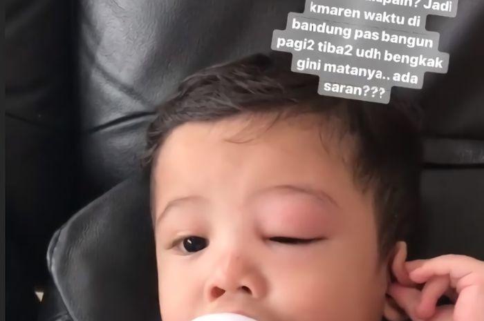 Anak Ratna Galih alami mata bengkak