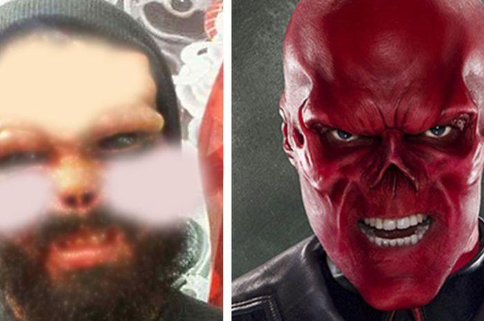 Henry Damon, pria yang mengoperasi wajahnya agar seperti tokoh jahat Red Skull