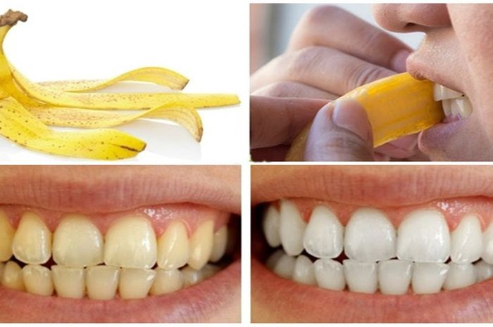 Kulit Pisang Ternyata Bikin Gigi Putih Cemerlang Tertarik Mencoba