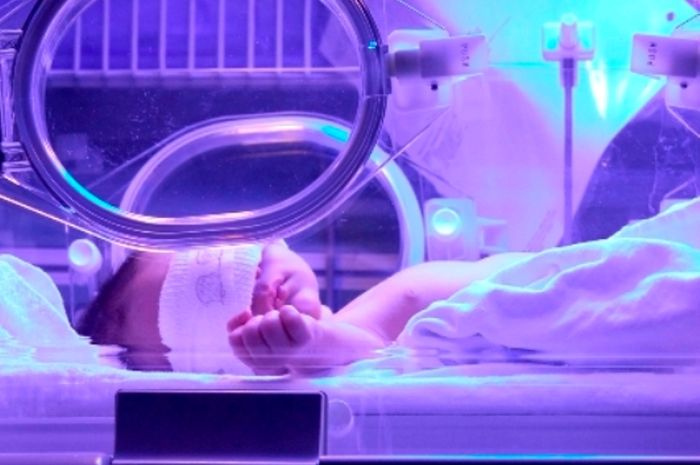 Penyebab kematian mendadak pada bayi baru lahir