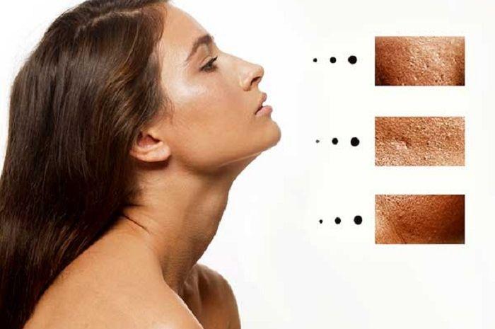Cara menyamarkan pori-pori besar di wajah