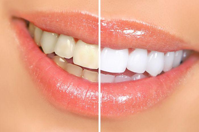 Hanya Butuh 2 Bahan Alami Ini Untuk Memutihkan Gigi Dalam 3 Menit