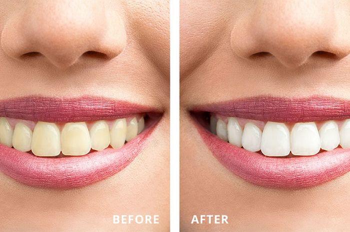 Begini Cara Memutihkan Gigi Kuning Dalam Waktu Kurang Dari 2 Menit