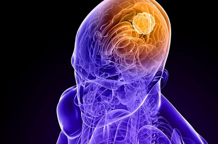 Sederhana, Inilah Cara-cara Mencegah Kanker Otak - Nakita