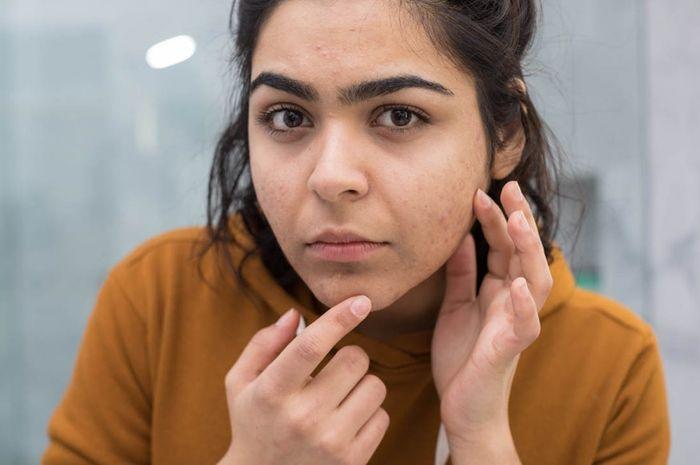 6 Masalah Kulit Ini Bisa Terjadi Bila Terlalu Banyak Gunakan Skin Care