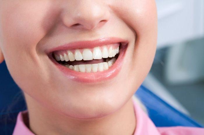 Hilangkan Karang Sekaligus Memutihkan Gigi Cukup Dengan 5 Makanan
