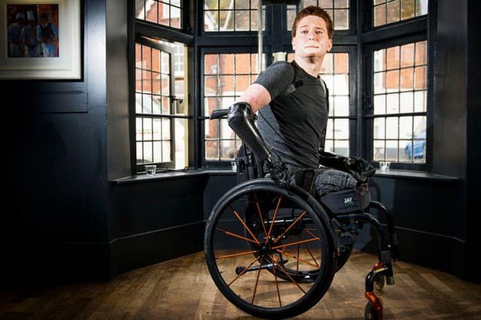awalnya hanya flu, Alex Lewis malah kehilangan dua tangan dan dua kakinya