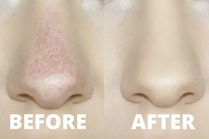 Kulit Di Sekitar Hidung Kering Dan Mengelupas Ini Cara Mengatasinya