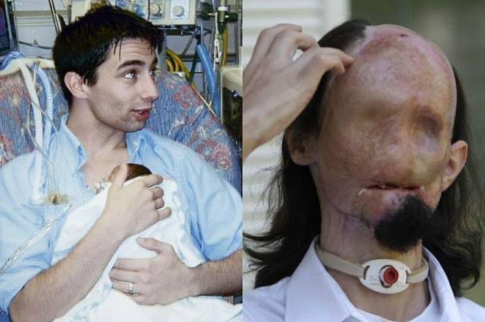 Dallas sebelum dan sesudah insiden yang merusak wajahnya.