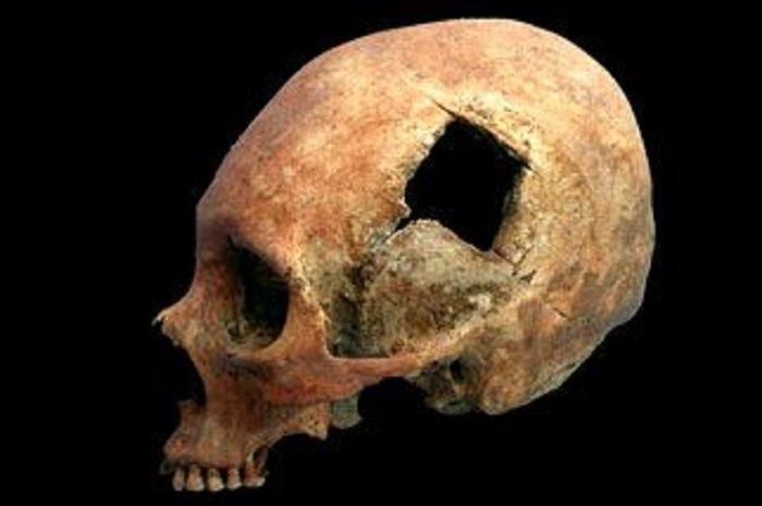 Pembedahan bangsa Inca