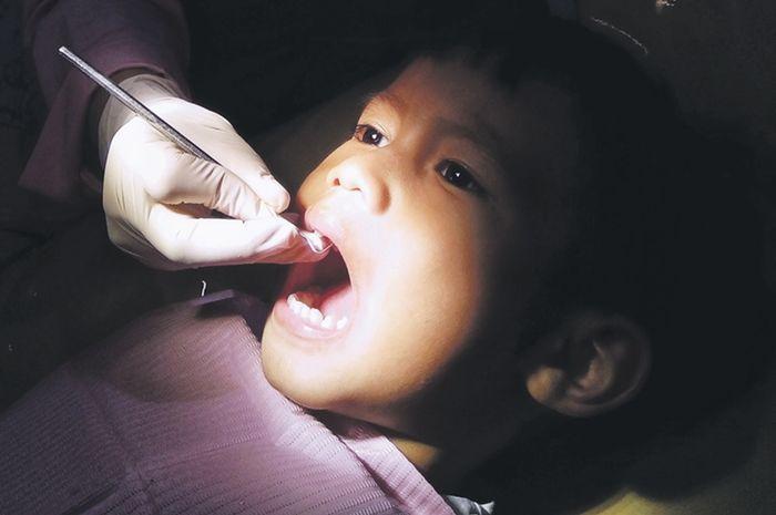 Ilustrasi masalah gigi pada anak