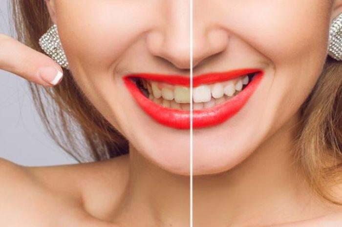 Tak Hanya Kulit Pisang 5 Bahan Alami Ini Juga Ampuh Putihkan Gigi