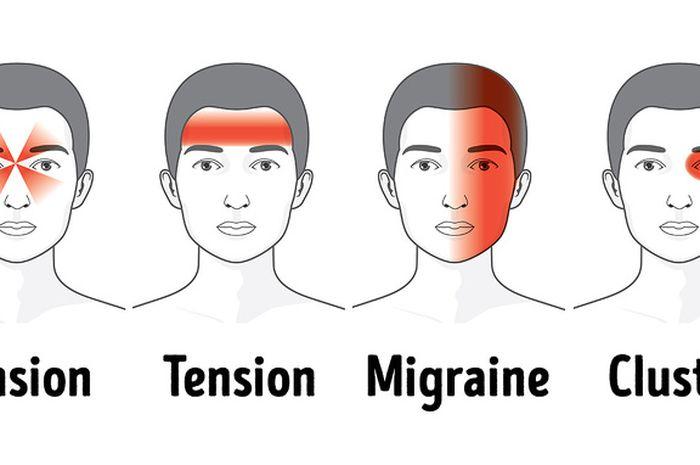 3 jenis sakit kepala yang sering dialami manusia