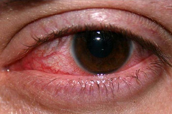 760+ Gambar Hantu Mata Berdarah Terbaru
