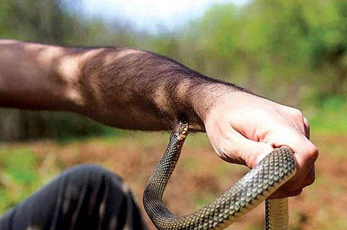 Banyak salah kaprah dalam penanganan pertama digigit ular berbisa.